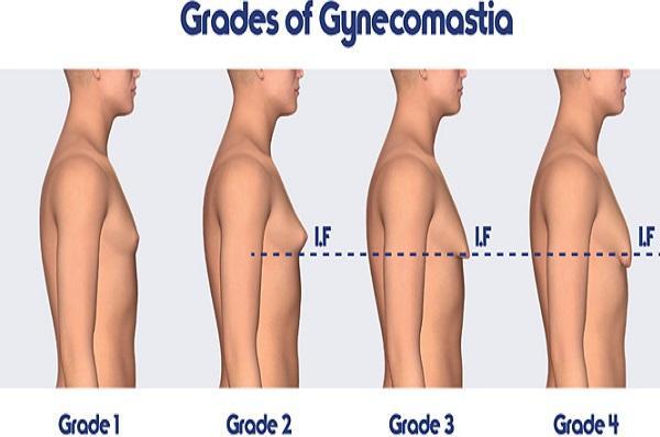 ГИНЕКОМАСТИЯ – причини, профилактика и лечение