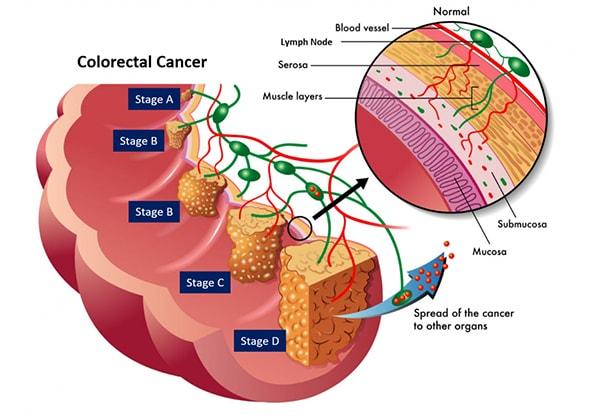 Един час ходене на ден помага при рак на дебелото черво